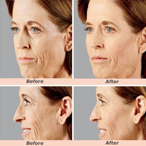 Face Fillers Before after