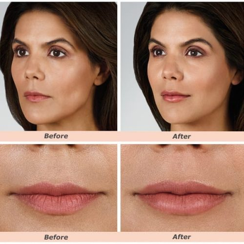 Face and Lips Fillers