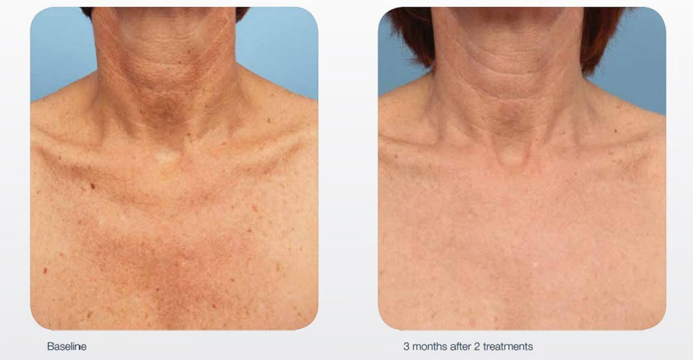 IPL-chest-photorejuvenation