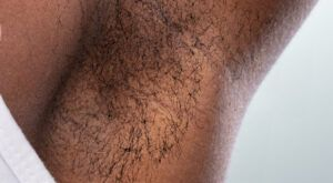 Laser Hair Removal Underarm before